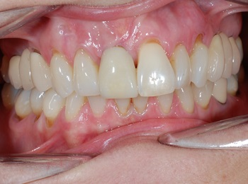 Gap replaced with Implant and crown