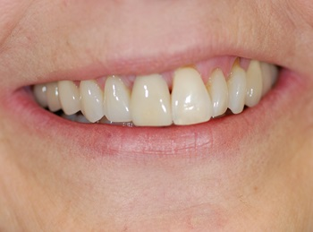 upper central gap replaced with implant and crown