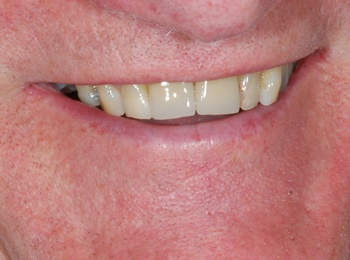 Upper centrals implant retained crowns