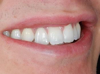 After- Implant retained crown upper lateral