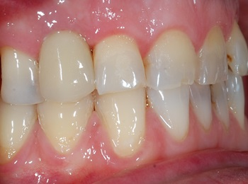 Implant Retained Crown Upper Right lateral