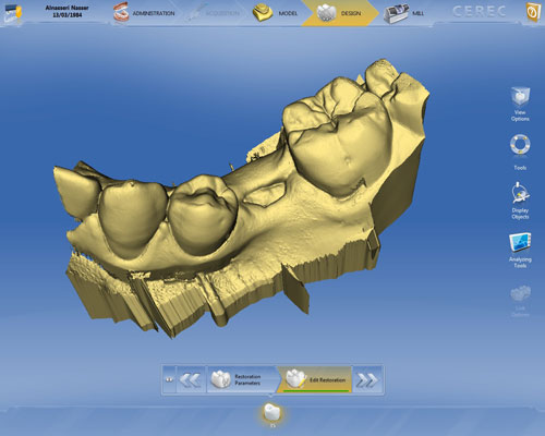 Digital scan of prospective tooth site